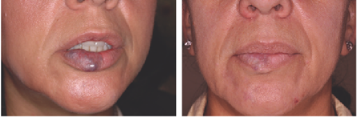 Laser treatment of vascular lesions - Lasers and Energy