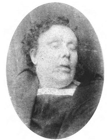 Annie Chapman lying dead in the mortuary. None of the terrible injuries inflicted upon her body can be seen. Annie was murdered on 8 September 1888, when she was 47 years old. She was ill at the time, and the postmortem showed that she would not have lived many more years even if she had not encountered Jack the Ripper.