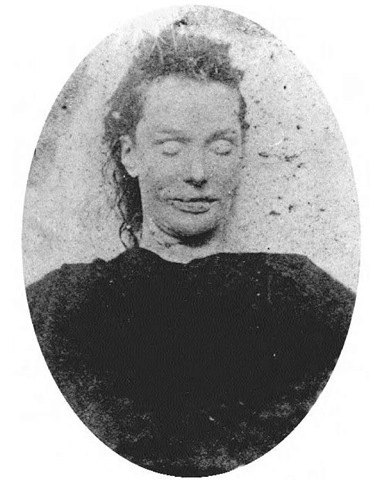 The body of Elizabeth Stride in the mortuary. Many authors hold Elizabeth to have been the first victim on the night of the so-called double event of 30 September 1888. The only injury Elizabeth suffered was a cut throat, and it is possible that her killer was disturbed by the arrival of Louis Diemschutz and his horse and cart.