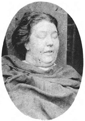 The body of Martha Tabram lying in the mortuary. Note that she looks much older than her 39 years, owing in no small part to the type of life she had led. Her body was formally identified by her estranged husband, Henry Samuel Tabram.