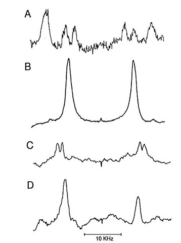 Deuterium magnetic resonance spectra of sn-2 and sn-3 phosphatidylcholine bilayers deuterated at different positions (50 wt% lipid, 50 wt% H2O). (A) 1,2-dipalmitoyl-sn-glycero-3-phosphocholine deuterated in both chains at the C-2' segment [Seelig and Seelig (1975). Biochim. Biophys. Acta 406, 1]; (B) 1,3-bis-([2',2'-2H2]palmitoyl)-sn-glycero-2-phosphocholine [Seelig et al. (1980). Biochemistry 19, 2215); (C) 1,2-dipalmitoyl-sn-glycero 3-phosphocholine deuterated in both chains at the C-3' segment; (D) 1,2-dipalmitoyl-sn-glycero-3-phosphocholine deuterated in both chains at the C-10' segment [Seelig and Seelig (1974).