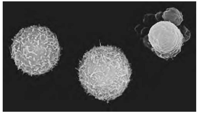 "Scanning Electron Micrograph (SEM) of human white blood cells (leucocytes) showing one cell undergoing apoptosis. Apoptosis is the process of ""genetically programmed cell death."" At upper right, an apoptotic white blood cell has shrunk and its cytoplasm has developed blebs (grapelike clusters). Normal white blood cells are seen beside it. These white blood cells are myeloid leucocytes, originating from bone marrow. The human myeloid cell line depends on growth factors to survive, and cells undergo apoptosis when deprived of growth factors. Research on apoptosis may provide genetic treatments for diseases such as cancer. Magnification: x7,500 at 8x10-in. size."