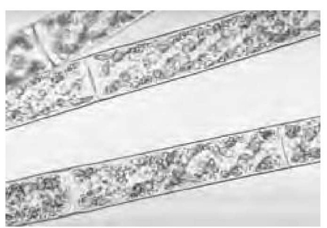 Spirogyra is a filamentous algae that can be found in almost every pond or ditch.