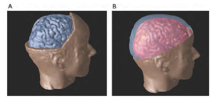 Visualization of the brain inside the head. The brain and the head were prepared as separate objects and placed in the scene for rendering. In image A, a section of the head is removed in the head image, whereby the brain is exposed in the removed section. In image B, a clip plane separates the upper section of the skull form the lower, and transparency was used in the upper section.