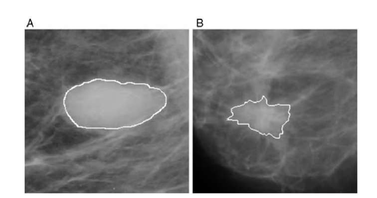 Abnormal masses in x-ray mammographies. (A) shows a circular, benign mass with regular outlines; (B) shows a spiculated mass with its irregular outlines. Irregular boundaries often indicate malignancy.