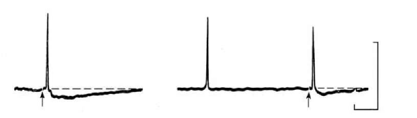 Decrease in amplitude of spike induced by stimulation of olfactory nerve of frog after irritation of olfactory epithelium by the smell. At the left control response to the nerve stimulation (pointer). At the right - the nerve stimulation soon after presentation of smell evokes low amplitude spike (second spike), while spontaneous spike was normal (left spike). Calibration 50 mV and 100 ms.