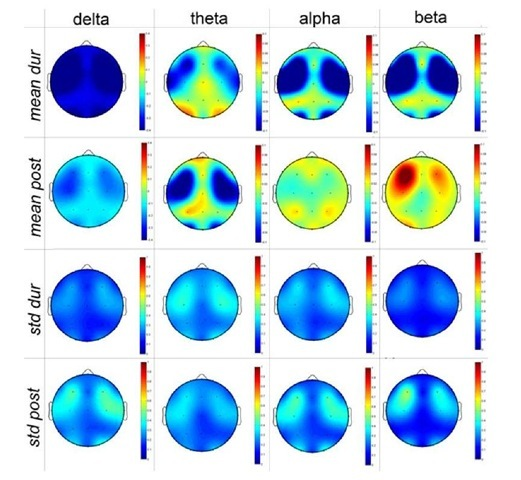 Topographic EEG Brain Mapping before, during and after Obstructive