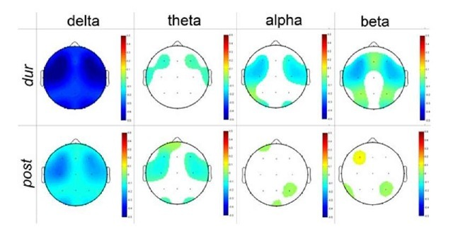 Topographic EEG Brain Mapping before, during and after ...