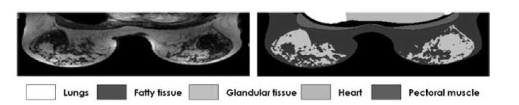 MR scan on an axial slice of a clinical breast MR T1 weighted volume with the manual annotation of the different structures