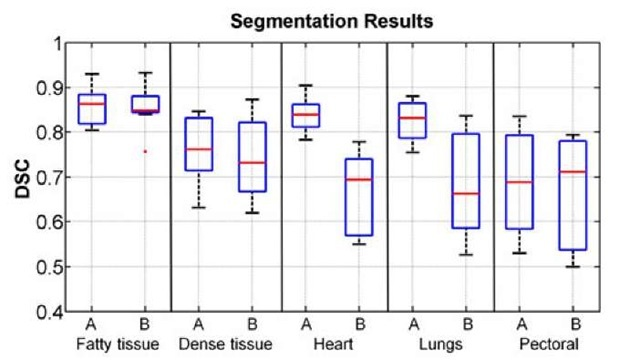 Box plot with segmentation DSC values for each organ using VOI affine (A) and B-splines (B) registrations