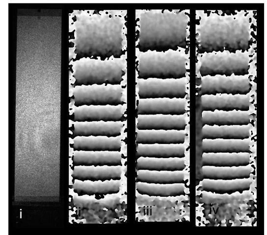 Aluminium cantilever fringe pattern results. i) simple image of cantilever, ii) annealed sample result, iii) residual stress result, iv) peened sample result.