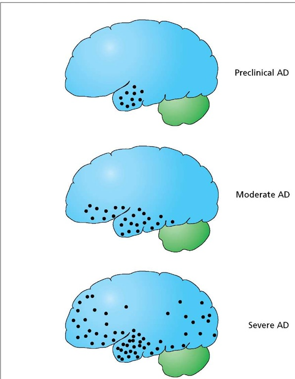 Progression of AD. Alzheimer's disease (black circles) begins in the hippocampus, spreading over a period of years to affect several regions of the cerebrum.