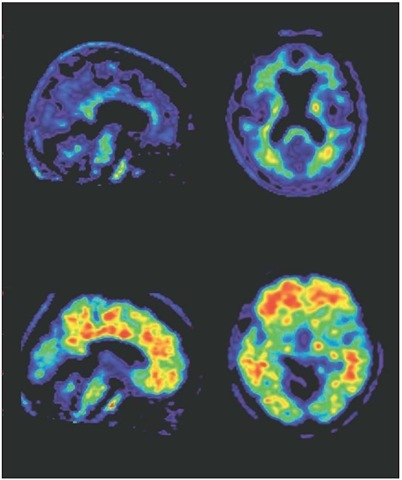 Imaging beta-amyloid. A PET scan of the brain of a healthy volunteer (top pair) and a patient with Alzheimer's disease (bottom pair). Amyloid plaques show up as red, indicating high uptake of florbetapir.