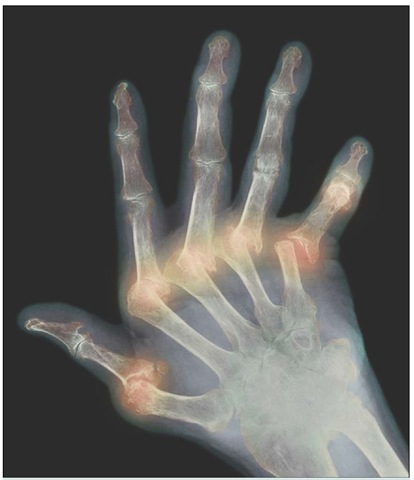 Arthritic hand. Colored X-ray of the deformed hand of a patient suffering from rheumatoid arthritis. The patient's fingers are abnormally bent because of damage to the joints (orange). Rheumatoid arthritis is an autoimmune disorder. It occurs when the body's immune system attacks joint tissue, commonly in the hands and feet. Affected joints become inflamed and painful, limiting movement. There is no cure for the disease, but anti-inflammatory drugs and immunosuppressants may relieve the symptoms. Physiotherapy can help to keep the joints supple, and special tools may compensate for the lack of mobility.