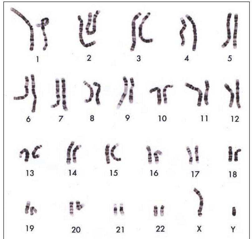 "A normal human ka ryotype. A ka ryotype represents the full set of chromosomes arranged with respect to size, shape, and number. Human cells contain 23 pairs of chromosomes, 22 autosomes and a pair of sex chromosomes. The sex chromosomes are either ""X"" or ""Y."" Females have two ""X"" chromosomes, whereas males have an ""X"" and a ""Y"" chromosome. Karyotypes are used to diagnose genetic illnesses and are also used to characterize different forms of cancer."