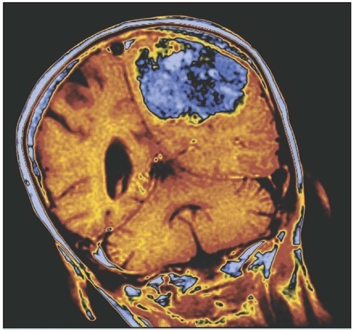 Brain tumor. Colored magnetic resonance imaging (MRI) scan of a coronal section through the brain of a 74-year-old woman, showing a large tumor. At upper center is the tumor (blue) within one cerebral hemisphere (orange) of the brain; the other cerebral hemisphere (at center left) is normal, containing a dark ventricle or cavity. The cerebellum of the brain is seen at lower center. Brain tumors may be primary tumors arising in the brain first, or they may be spread from cancer elsewhere in the body. A large tumor such as this may cause brain compression and nerve damage.
