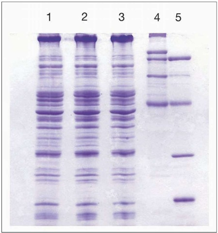 Protein electrophoresis. In this procedure, proteins are extracted from cells of interest and then fractionated by electrophoresis on a polyacrylamide gel. After the gel is stained, or exposed to X-ray film, the proteins appear as bands. In the example shown, approximately 30 different proteins (bands) have been identified. Lanes 1 to 3 are proteins extracted from housefly flight muscle at one, four, and eight days of age. Lanes 4 and 5 are size markers, which decrease in size from top to bottom. In a different form of this procedure, called two-dimensional protein electrophoresis, the proteins appear as spots over the face of the gel. Two-dimensional protein gels have a higher resolution and can detect about 1,000 different proteins, but this is still much less than the more than 20,000 proteins a typical animal cell can produce.