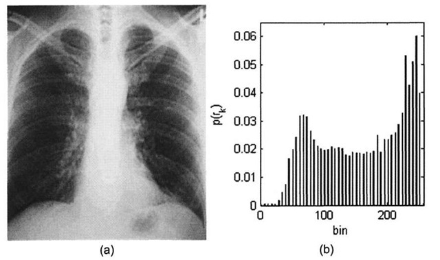 (a) Contrast-stretched chest x-ray image, (b) Modified histogram.