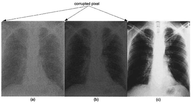 Adaptive contrast-stretching algorithm, (a) Corrupted low-contrast x-ray image, (b) Result from applying algorithm 3.1. (c) Result from MATLAB adaptive contrast stretching function, an implementation of Algorithm 3-2.