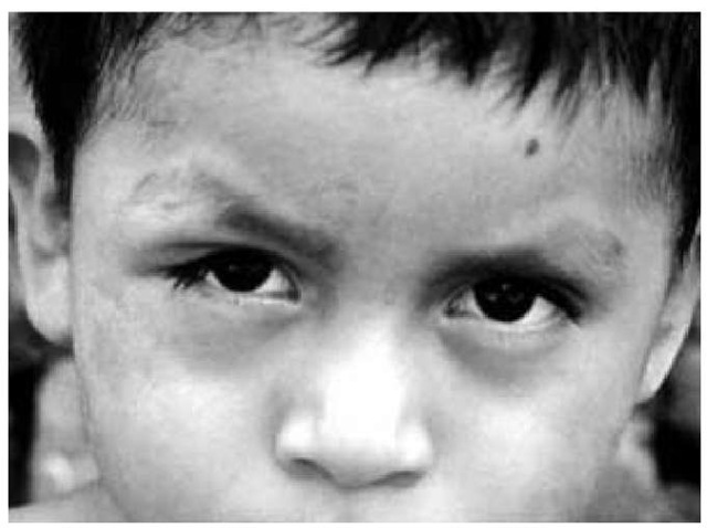 Periorbital edema of the right eye (Romana sign) is evident in a child from Panama with acute Chagas disease.