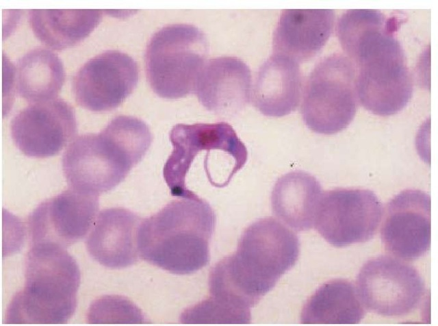 A trypanosomal form of Trypanosoma cruzi is visible on this Giemsa-stained blood smear.