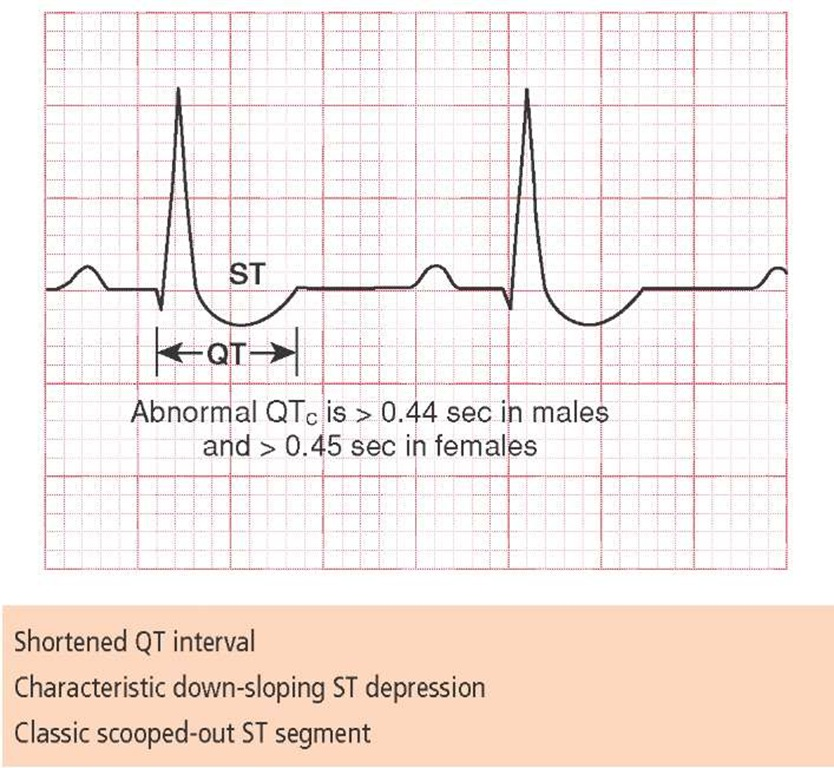 The digitalis effect demonstrated on ECG.