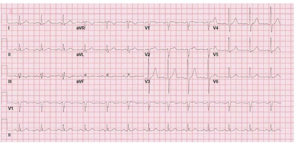 Normal 12-lead ECG.