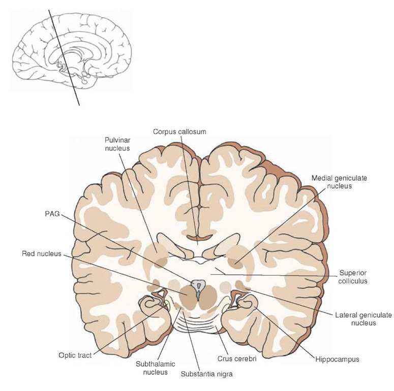 Cross section of the brain depicting the positions occupied by the pulvinar, medial geniculate, and lateral geniculate nuclei in the caudal aspect of the thalamus and proximal to the mid-brain. The inset indicates the approximate cut of the section.