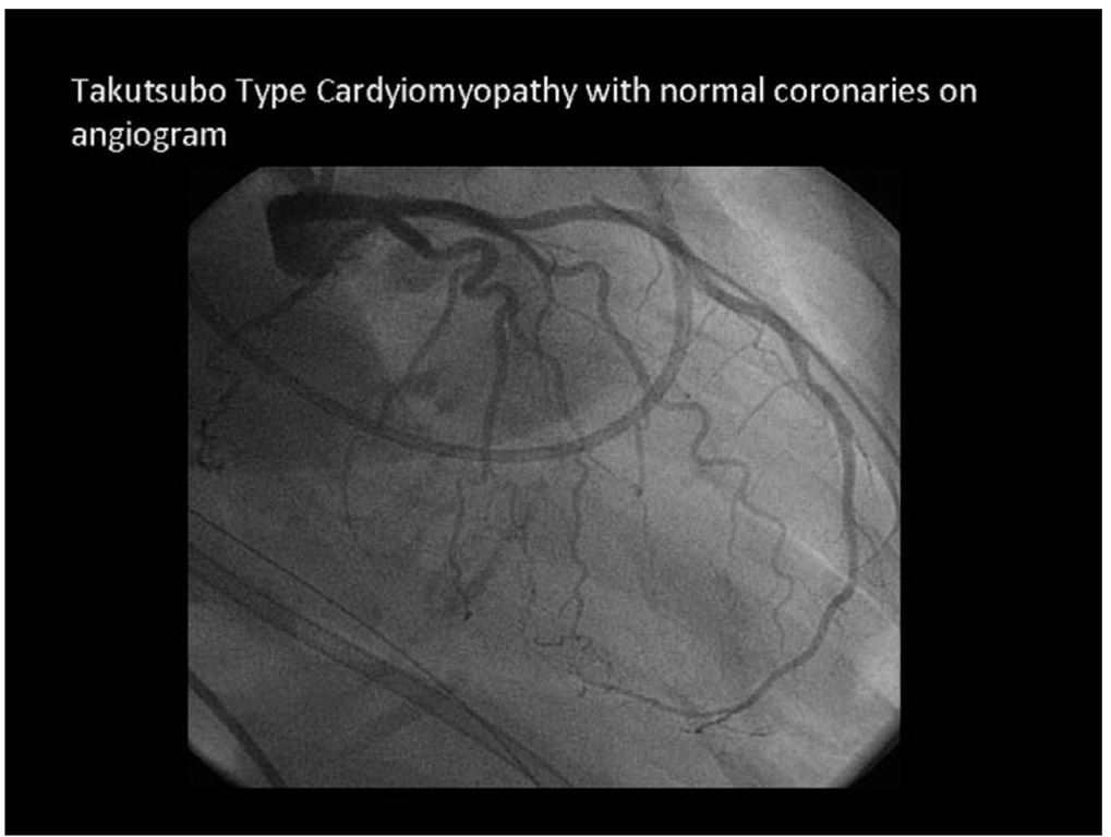 Takutsubo Type Cardyiomyopathy with normal coronaries on angiogram