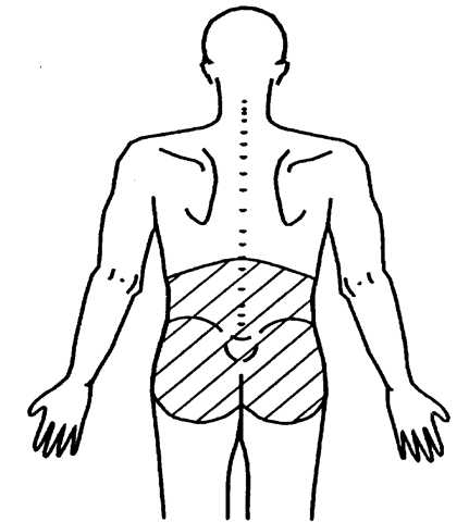 The anatomical boundaries representing the low back