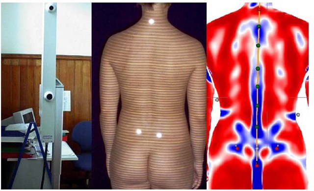 Video raster stereography with camera and projector system (left), projection lines on the back surface with vertebra prominens (VP) and lumbar dimples (DL+DR) high-lighted -here with optical markers only for demonstration (middle), and video raster stereography back surface reconstruction with landmarks recognized automatically (red dots) and plane curvatures representing convex (red areas) or concave (blue areas) back shape profiles (right).