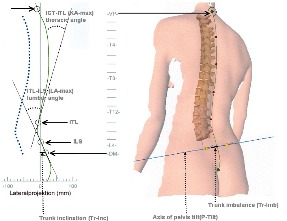 Spine shape in the sagittal plane: kyphosis angle (KA-max) and lordosis angle (LA-max) with inflectional points of the curvature from cervical to thoracic spine (ICT), from thoracic to lumbar spine (ITL) and from lumbar to sacral spine (ILS) and three dimensional animation of back surface with lumbar dimples (yellow dots - with arrows representing the direction of the mathematical normal on each dimple's plane) and spinous processes like vertebra prominens (VP) and sacrum point (SP) marking the beginning of the rima ani (green dots).