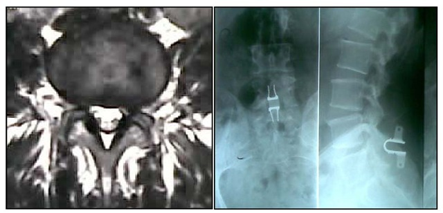 mobile listhesis I have grade 1 spondylolisthesis (spondy), for one year bothering me, and i am   i ha e mobile grade 2 (40%) spondyolisthesis with x-rays showing greater.