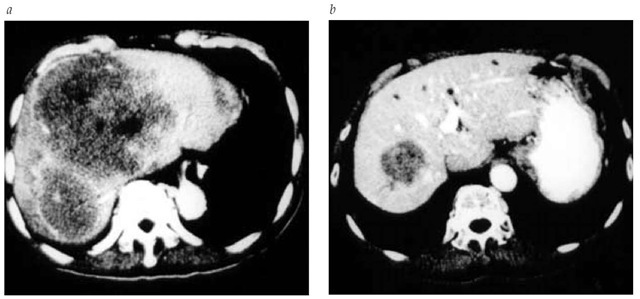 CT scans of a patient with hepatic metastases from bladder cancer before (a) and after (b) treatment with gemcitabine-cisplatin.