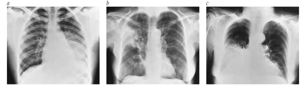 (a) This chest radiograph demonstrates a focal left lower lobe infiltrate caused by bacteremic pneumococcal pneumonia in a 22-year-old man. (b) A focal right upper lobe infiltrate caused by alveolar cell carcinoma is revealed in this chest radiograph of a 71-year-old woman. (c) The focal right lower lobe infiltrate in this chest radiograph is the result of lipoid pneumonia in a 68-year-old woman.