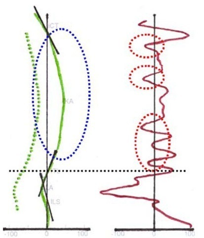 Lateral projection of spinal alignment (left) with back surface (drawn green line) and calculated line of vertebral centres (dotted green line) with a focus on the thoracic spine (blue dotted oval) and the second mathematical differentiation (right) with the curve of local changes of angles at a given point (drawn red line) with an emphasis on curve areas reaching or overreaching the midline (red dotted ovals) indicating structural deviations in the normal spinal alignment of the thoracic spine (area above the black dotted line).