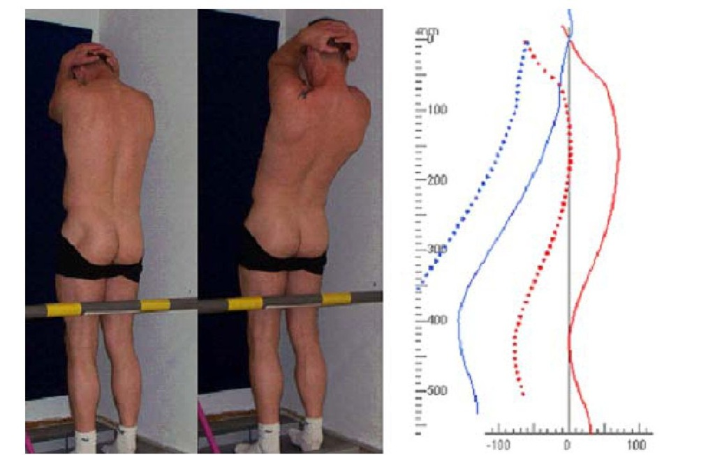 Test position with artificial hyper kyphosis in a basic (left) and a maximally hyper-extended position (middle) and the video raster stereographic representation of spinal mobility (right) for the back extension task