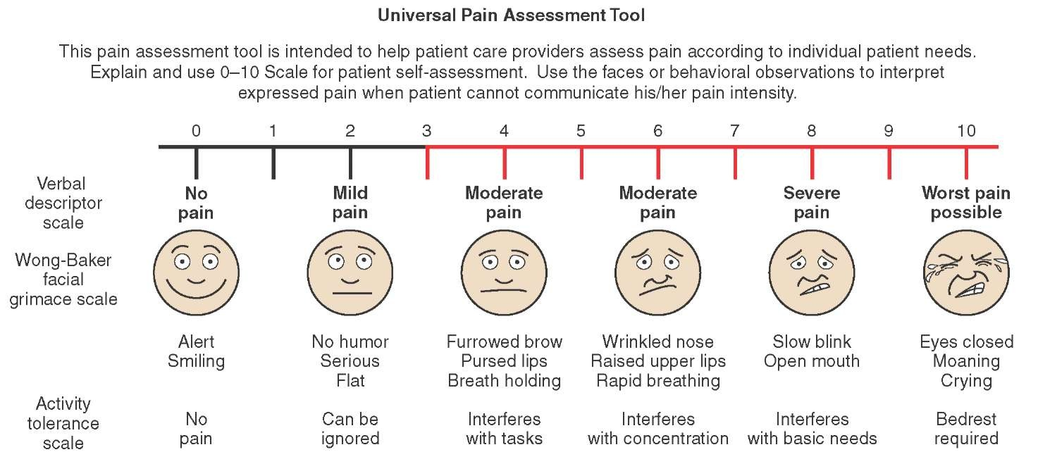 an analysis of the pain assessment in young children Revista paulista de pediatria scales for pain assessment in children aged three of the pain observation scale for young children and the visual.