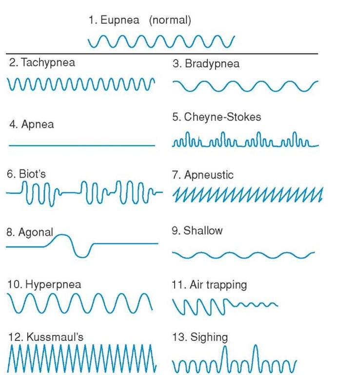 Abnormal respiratory patterns.