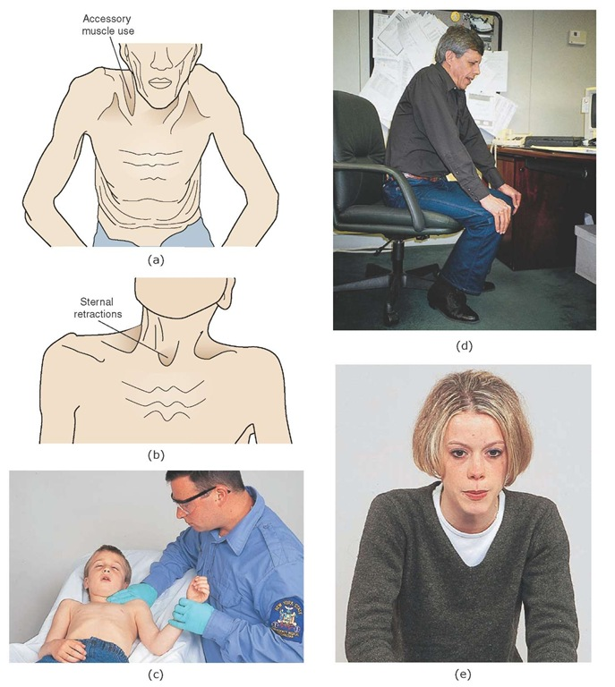 Signs of increased work of breathing. (a) Accessory muscle use. (b) Sternal retractions. (c) Rib retractions. (d) Tripod position. (e) Pursed lip breathing.