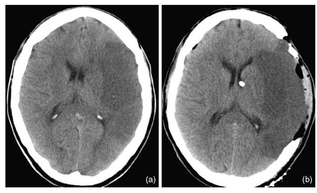 Occlusive cerebrovascular disease (Neurointensive care) Part 1
