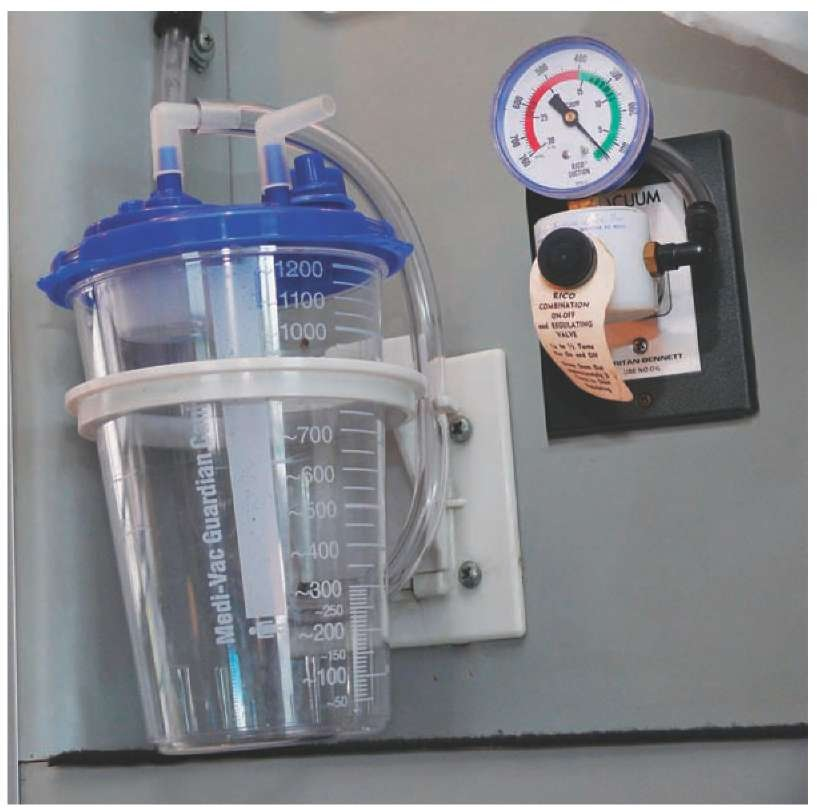 Non Intubating Airway Management Clinical Essentials
