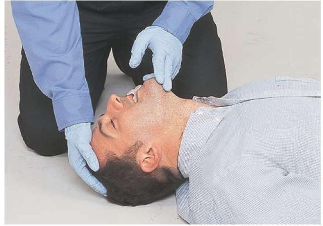 Intubating Airway Management Clinical Essentials