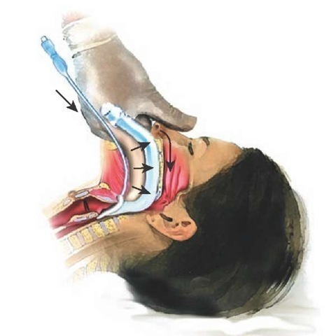 Intubating Airway Management Clinical Essentials