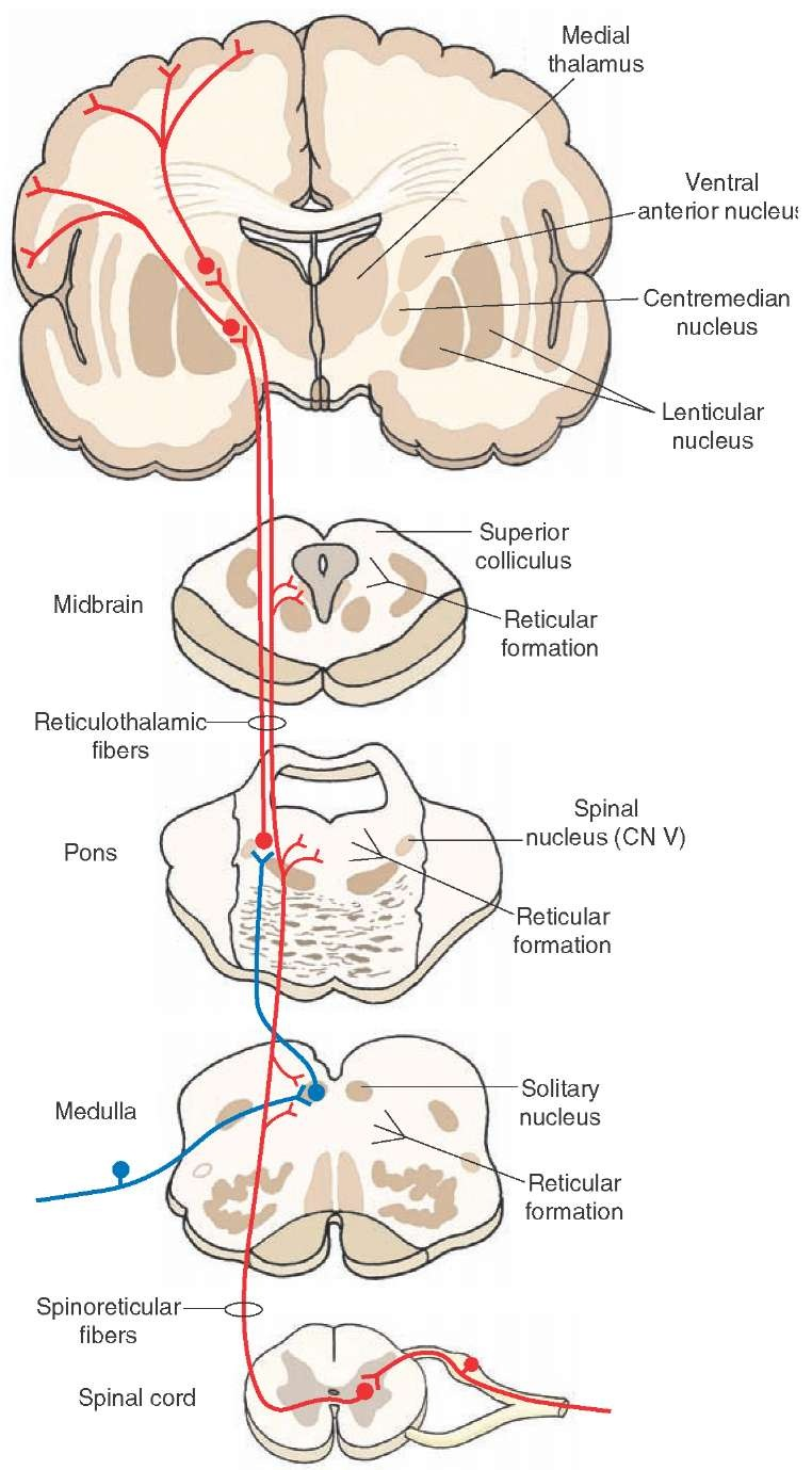 The ascending connections of the reticular formation and inputs into the reticular formation from lower levels of the central nervous system. The reticular formation receives spinoreticular fibers (shown in red). The ascending reticular fibers project either directly to the intralaminar nuclei (shown in red) or indirectly through an interneuron from the solitary nucleus to the dorsolateral pons first (shown in blue); neurons from intralaminar nuclei then project directly to the cortex (shown in red) or to specific thalamic nuclei, which then project to the cerebral cortex (not shown in this diagram). By either direct or indirect routes, inputs from the reticular formation can influence cortical activity and the transmission of sensory signals to the cortex. CN = cranial nerve.