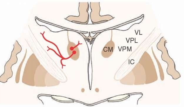 Cross section through the thalamus. Note the short efferent projections of a nonspecific thalamic nucleus, the centromedian nucleus (CM), to specific thalamic nuclei, such as the ventral posterior lateral (VPL), ventral posteromedial (VPM), and ventrolateral (VL) nuclei. IC = internal capsule.