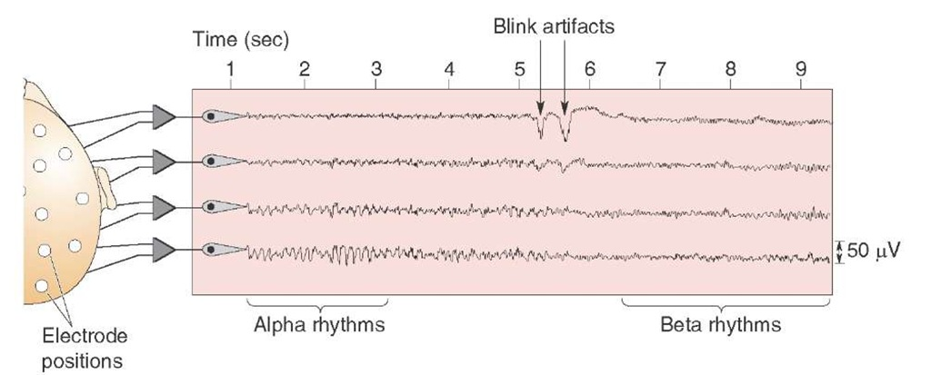 Tracings of a normal electroencephalogram. The locations of the recording electrodes, shown on the left side of the figure, are taken from an individual who is quiet but awake. Initially, the subject displays an alpha rhythm during the quiet period, but when he opens his eyes (shown by the blink artifacts), the alpha rhythm is replaced by a beta rhythm.