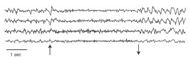 Electrical stimulation of the reticular formation. Electroencephalographic (EEG) recordings from the studies of Moruzzi and Magoun of the activating patterns of the brainstem reticular formation on the cortex. The four tracings are recorded over different parts of the cerebral cortex of the cat. The arrows pointing up and down indicate the onset and offset of electrical stimulation. Note the desynchronization of the EEG during stimulation followed by a return to a synchronized pattern after stimulation is terminated.