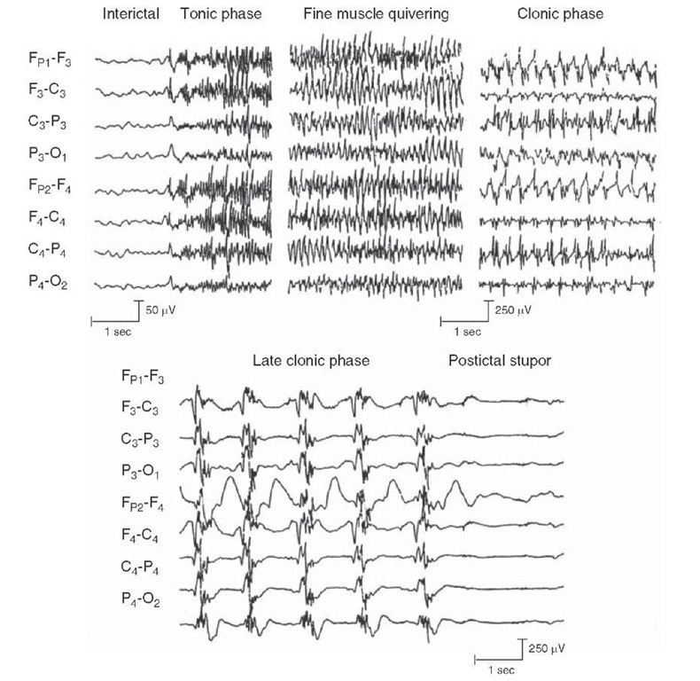 Electroencephalogram records showing a generalized tonic-clonic seizure. The various segments illustrate the interictal phase (prior to the seizure); the tonic phase (where the body is stiff) with repetitive spiking; a clonic phase (where body is jerking), which shows spike and waves; and a postictal phase (where no seizure activity is present).