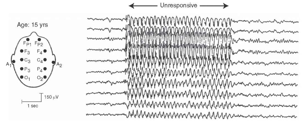 Absence seizure. Electroencephalogram records illustrating an absence seizure consisting of a 3-Hz spike and wave pattern, at which time the patient was unresponsive.